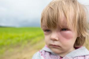 Wespenstich bei einem Kind